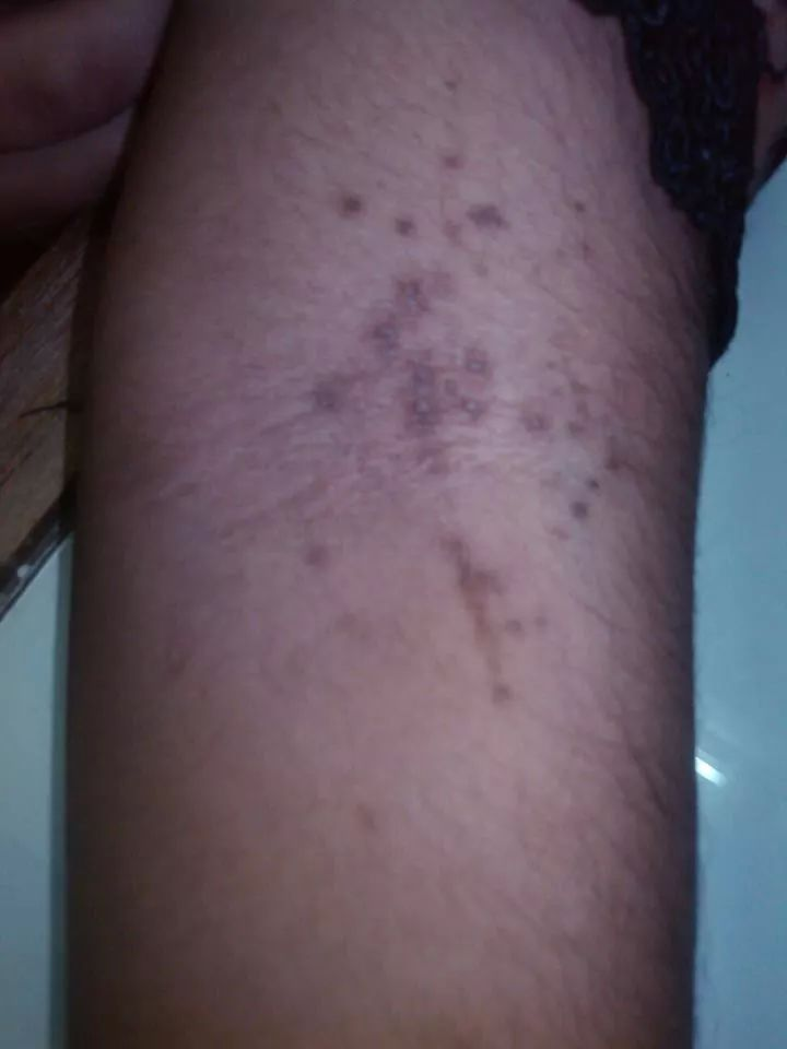 Warts treated with Homeopathic Medicine – Homeopathy For All